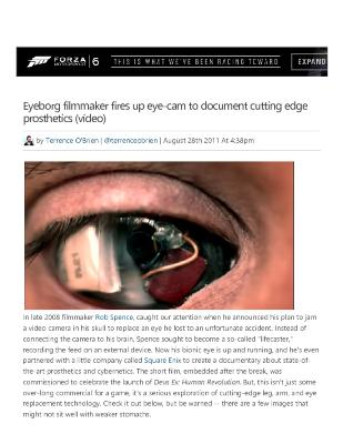 Eyeborg Filmmaker Fires Up Eye-Cam To Document Cutting Edge Prosthetics