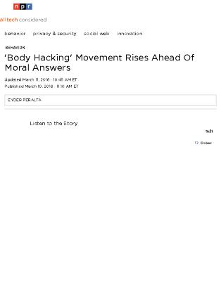 'Body Hacking' Movement Rises Ahead Of Moral Answers