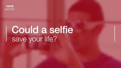 Selfie app 'spots early signs of pancreatic cancer'
