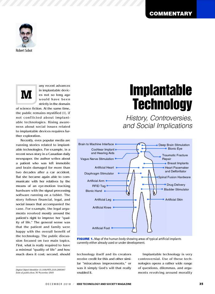 Implantable Technology: History, Controversies, and Social Implications