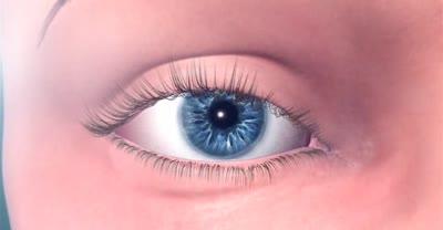 Omega Ophthalmics - The Gemini Refractive Capsule
