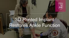 3D Printed Implant Restores Ankle Function