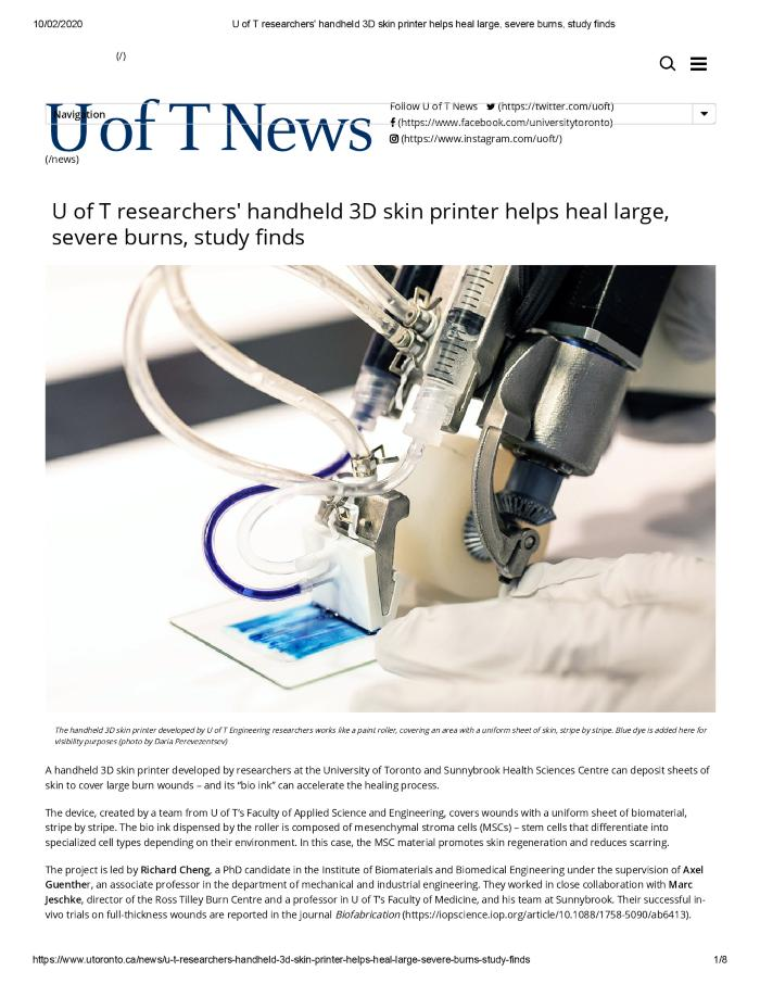 U of T researchers' handheld 3D skin printer helps heal large, severe burns, study finds