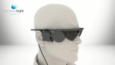 Second Sight Argus II Retinal Prosthesis System