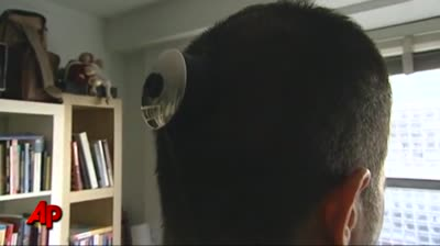 3rd Eye Artist Gets Camera Implanted in Head
